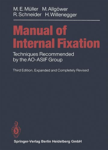 9783540525233: Manual of INTERNAL FIXATION: Techniques Recommended by the AO-ASIF Group