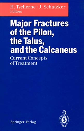 9783540558378: Major Fractures of the Pilon, the Talus, and the Calcaneus: Current Concepts of Treatment