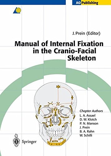 9783540618102: Manual of Internal Fixation in the Cranio-Facial Skeleton: Techniques Recommended by the AO/ASIF Maxillofacial Group: Techniques as Recommended by the Ao/Asif-Maxillofacial Group