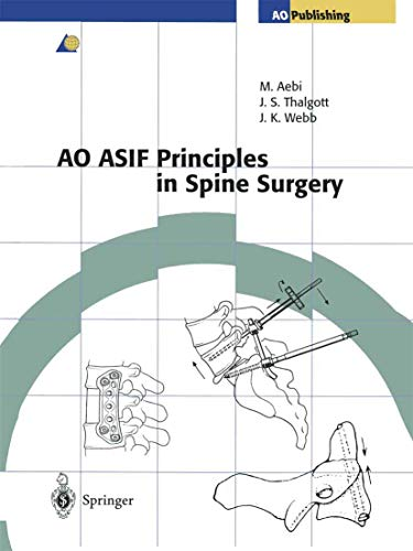 AO-ASIF Principles in Spine Surgery : Techniques Recommended