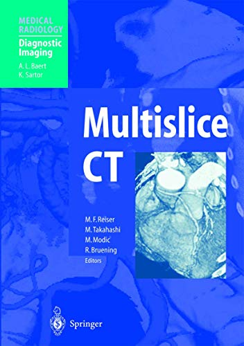 9783540663027: Multislice CT (Medical Radiology)
