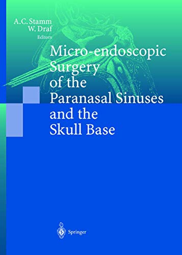 Micro-endoscopic Surgery of the Paranasal Sinuses and the Skull Base: Aldo Cassol Stamm