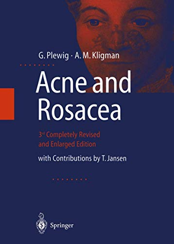 9783540667513: ACNE and ROSACEA