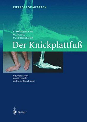 9783540674313: Fussdeformitaten: Der Knickplattfua