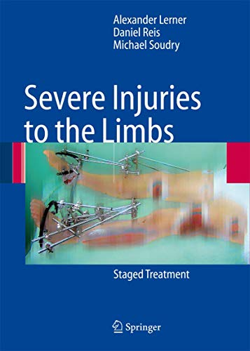 Severe Injuries to the Limbs: Staged Treatment (Hardcover): A. Lerner