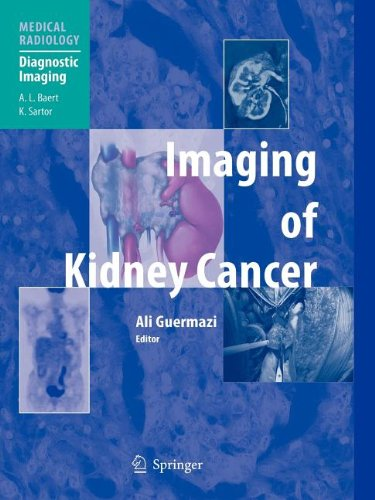 9783540801047: Imaging of Kidney Cancer