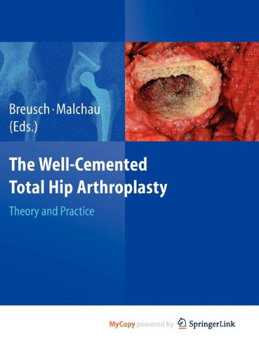 9783540806417: The Well-Cemented Total Hip Arthroplasty: Theory and Practice
