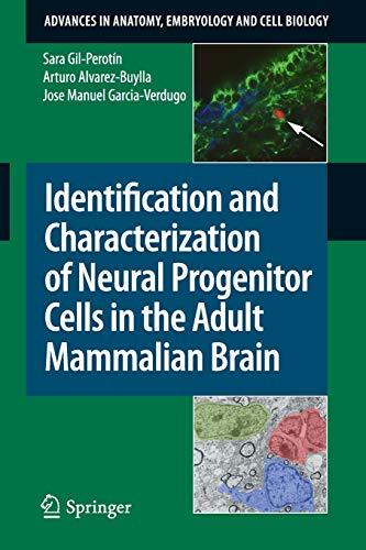 203: Identification and Characterization of Neural Progenitor: Sara Gil-Perotín; Arturo