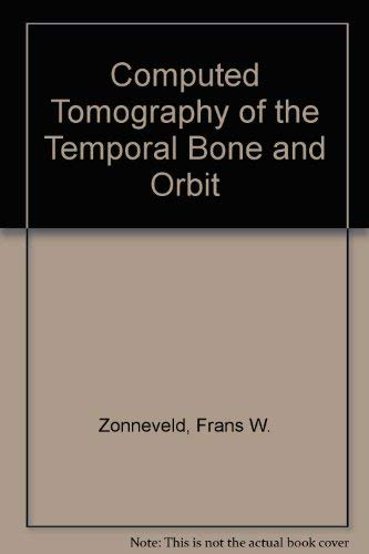 9783541722310: Computed Tomography of the Temporal Bone and Orbit