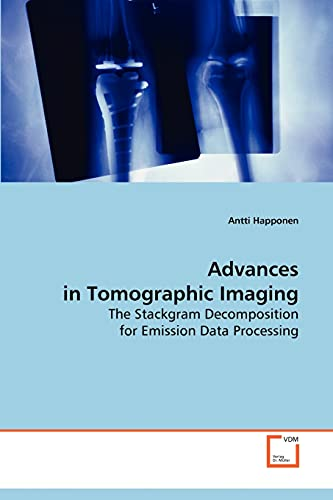 9783639087918: Advances in Tomographic Imaging: The Stackgram Decomposition for Emission Data Processing