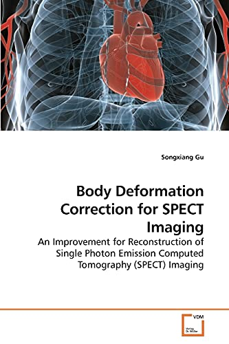 9783639247367: Body Deformation Correction for SPECT Imaging: An Improvement for Reconstruction of Single Photon Emission Computed Tomography (SPECT) Imaging