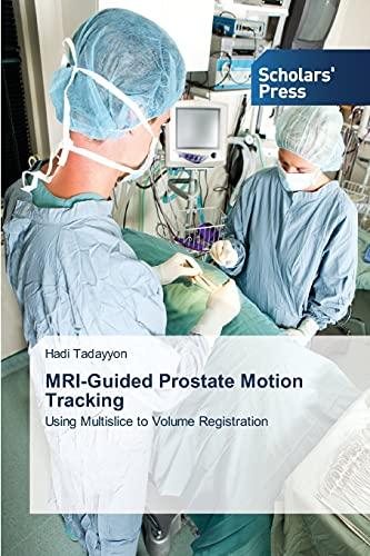 9783639512731: MRI-Guided Prostate Motion Tracking: Using Multislice to Volume Registration