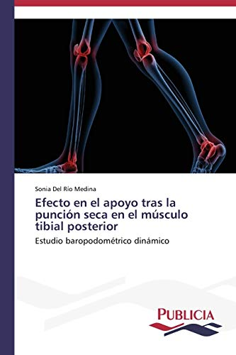 9783639555684: Efecto en el apoyo tras la punción seca en el músculo tibial posterior