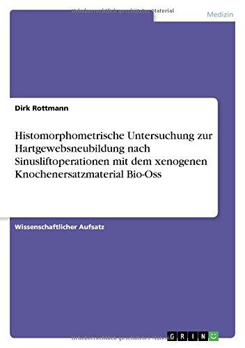 9783640635498: Histomorphometrische Untersuchung zur Hartgewebsneubildung nach Sinusliftoperationen mit dem xenogenen Knochenersatzmaterial Bio-Oss (German Edition)