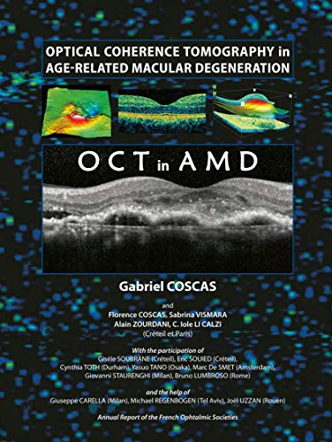 9783642014680: Optical Coherence Tomography in Age-Related Macular Degeneration