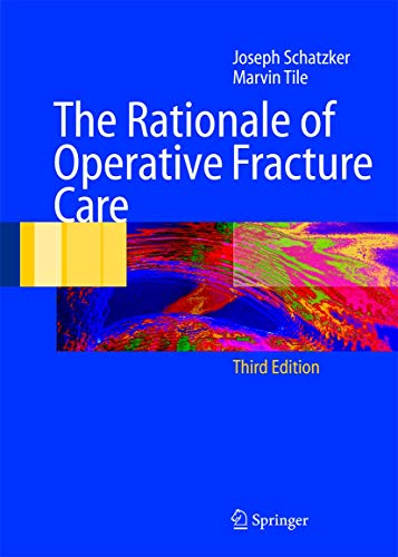 9783642061646: The Rationale of Operative Fracture Care