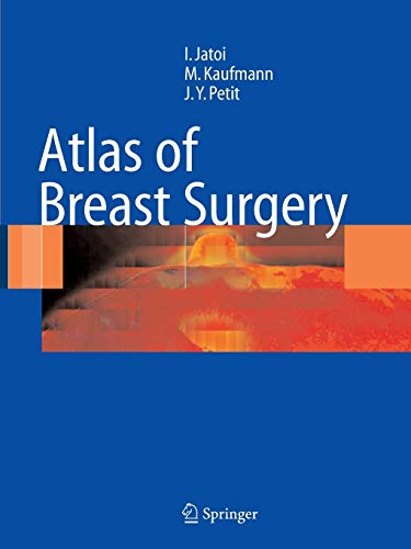 9783642063626: Atlas of Breast Surgery
