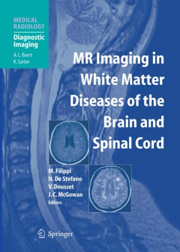 9783642072987: MR Imaging in White Matter Diseases of the Brain and Spinal Cord (Medical Radiology / Diagnostic Imaging)