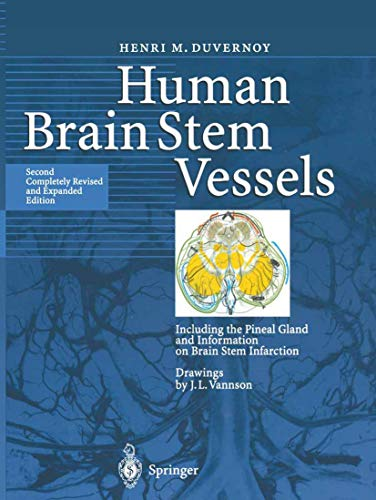 9783642084027: Human Brain Stem Vessels: Including the Pineal Gland and Information on Brain Stem Infarction