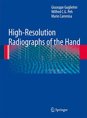 9783642098413: High-Resolution Radiographs of the Hand