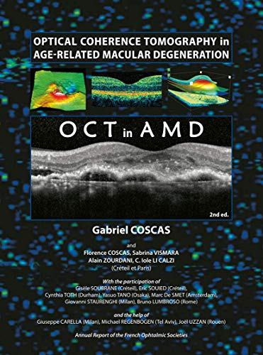 Optical Coherence Tomography in Age-Related Macular Degeneration (OCT in AMD): Gabriel Coscas