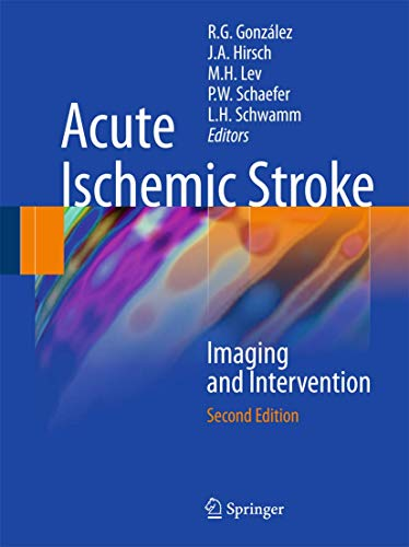 9783642127502: Acute Ischemic Stroke: Imaging and Intervention
