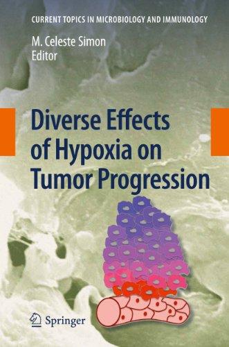 Diverse Effects of Hypoxia on Tumor Progression: Celeste M. Simon