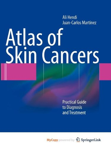 9783642134005: Atlas of Skin Cancers: Practical Guide to Diagnosis and Treatment