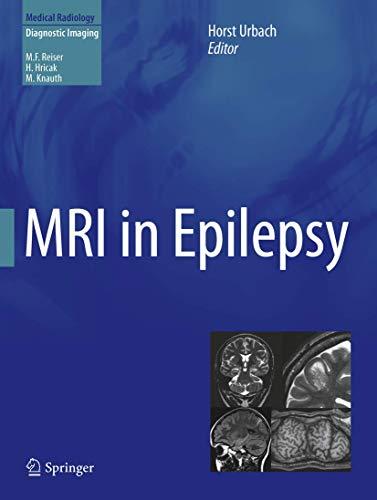 9783642251375: MRI in Epilepsy (Medical Radiology)