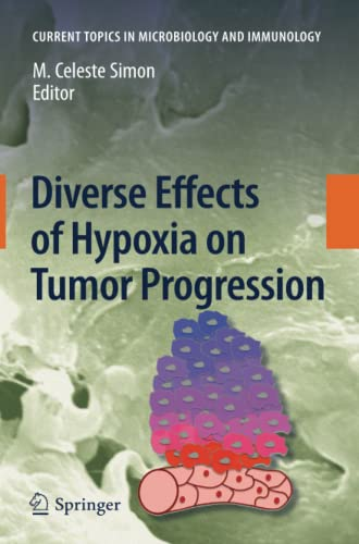 9783642264849: Diverse Effects of Hypoxia on Tumor Progression (Current Topics in Microbiology and Immunology)