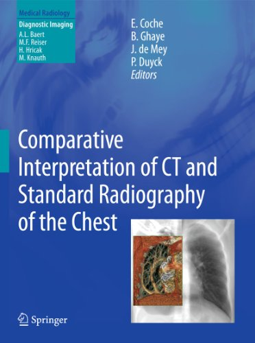 Comparative Interpretation of CT and Standard Radiography of the Chest: Emmanuel E. Coche