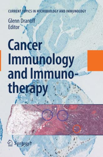 9783642267888: Cancer Immunology and Immunotherapy (Current Topics in Microbiology and Immunology)