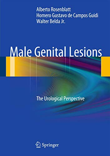 9783642290169: Male Genital Lesions: The Urological Perspective