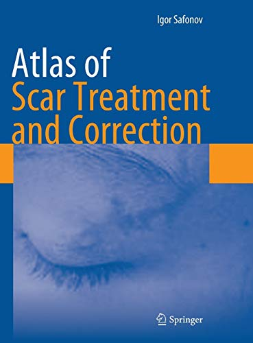 9783642291951: Atlas of Scar Treatment and Correction