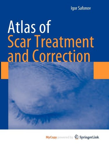 9783642291975: Atlas of Scar Treatment and Correction