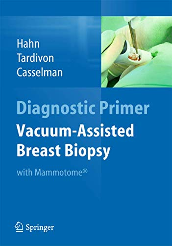 9783642342707: Vacuum-Assisted Breast Biopsy with Mammotome(R) (Diagnostic Primer)
