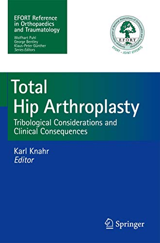 9783642356520: Total Hip Arthroplasty: Tribological Considerations and Clinical Consequences
