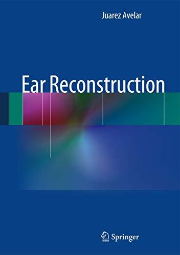 9783642356827: Ear Reconstruction