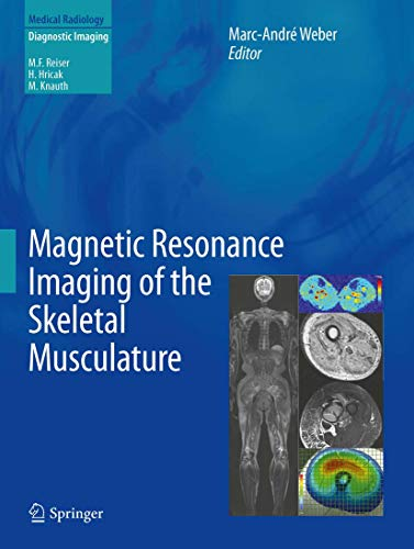9783642372186: Magnetic Resonance Imaging of the Skeletal Musculature (Medical Radiology)