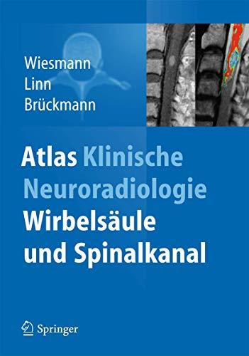 9783642381089: Atlas Klinische Neuroradiologie: Wirbelsäule und Spinalkanal (German Edition)