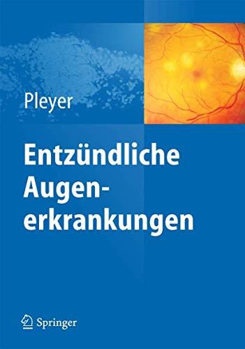 Entzündliche Augenerkrankungen (German Edition): Springer