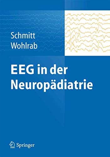 9783642398865: EEG in der Neuropädiatrie (German Edition)