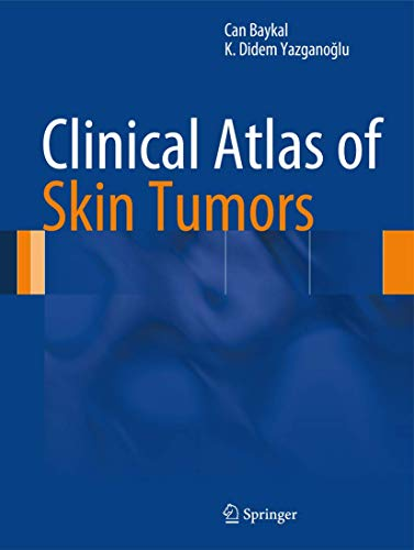 Clinical Atlas of Skin Tumors (Hardcover): Can Baykal