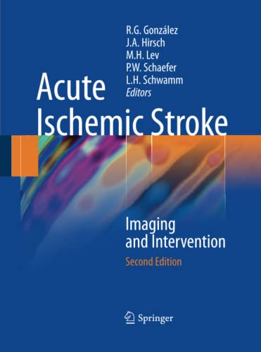 9783642423529: Acute Ischemic Stroke: Imaging and Intervention