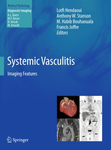 9783642448485: Systemic Vasculitis: Imaging Features (Medical Radiology)