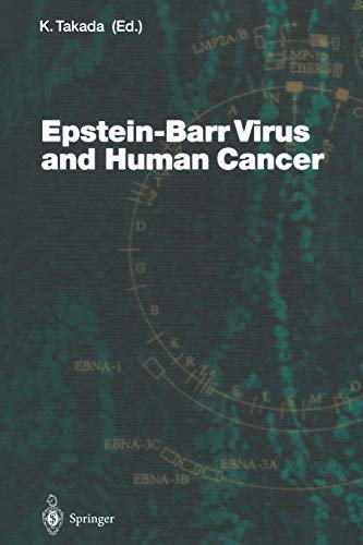 9783642625688: Epstein-Barr Virus and Human Cancer (Current Topics in Microbiology and Immunology)
