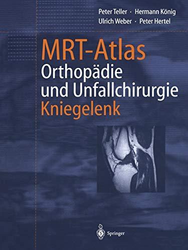 9783642626548: Mrt-Atlas Orthopadie Und Unfallchirurgie: Kniegelenk