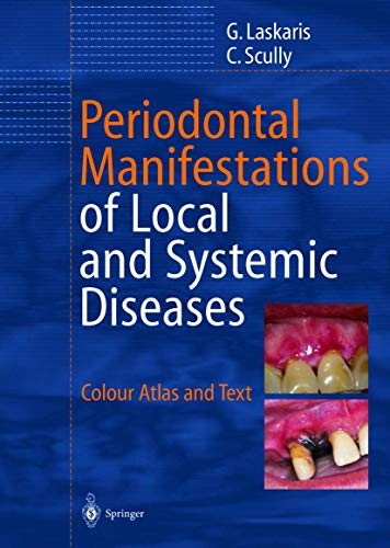 Periodontal Manifestations of Local and Systemic Diseases: Colour Atlas and Text (3642627889) by George Laskaris; Crispian Scully