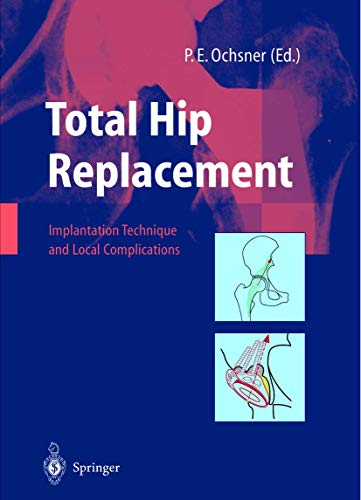 9783642628689: Total Hip Replacement: Implantation Technique and Local Complications
