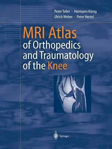 9783642628856: Mri Atlas of Orthopedics and Traumatology of the Knee